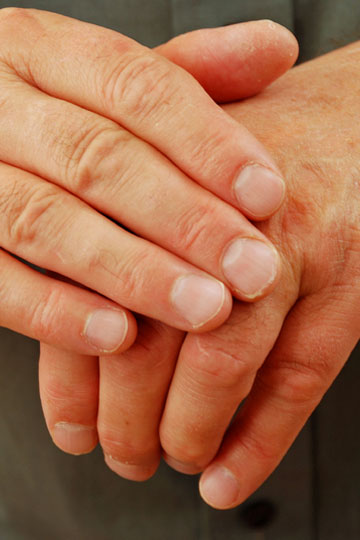 how to take care of dry skin on hands
