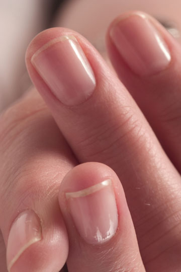 Ridges on Fingernails - Meaning, Symptoms, Causes, Treatment